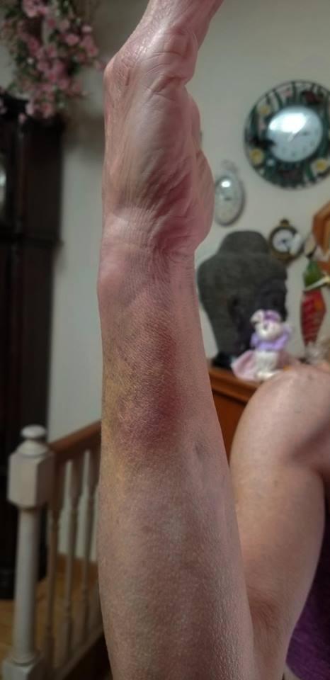 Sean Gilligan injured wife arm, @msgilligan