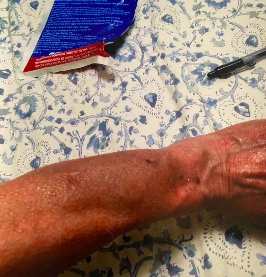 Sean Gilligan injured his wife, @msgilligan